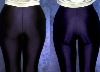 Zsírleszívás mindkét külső combon